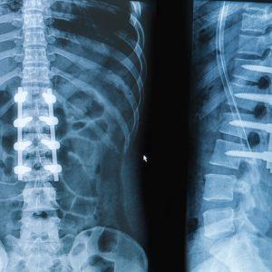Arthrodèse postérieure